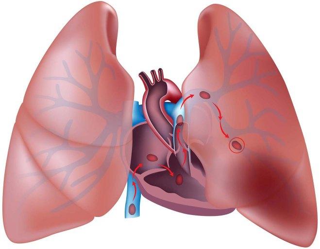 Pulmonary-embolism1